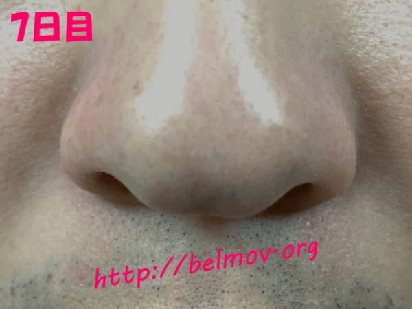 通販購入したデュオクレンジングバームを旦那(男性)の鼻に使ってみた写真6